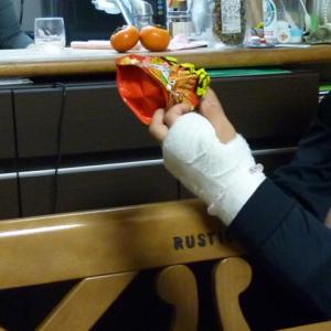 1106左手を骨折